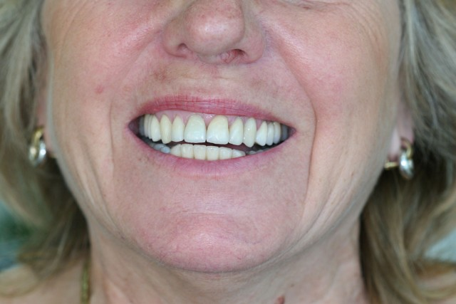 Full ceramic crowns totally biocompatible