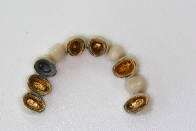Metal (gold)-ceramic bridge to replace missing teeth, improve the bite, function and esthetic.